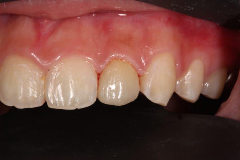 假牙復形-22-側門牙術後