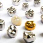 全金屬、全瓷冠、金屬烤瓷、全鋯冠,牙冠材質種類怎麼選?裝假牙牙套還會蛀牙嗎?