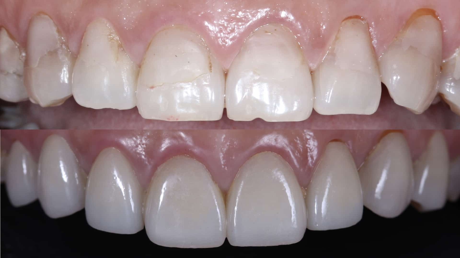 圖三、施作貼片後,保留牙齒本身弧度效果更自然(圖片來源:瑞比牙醫)