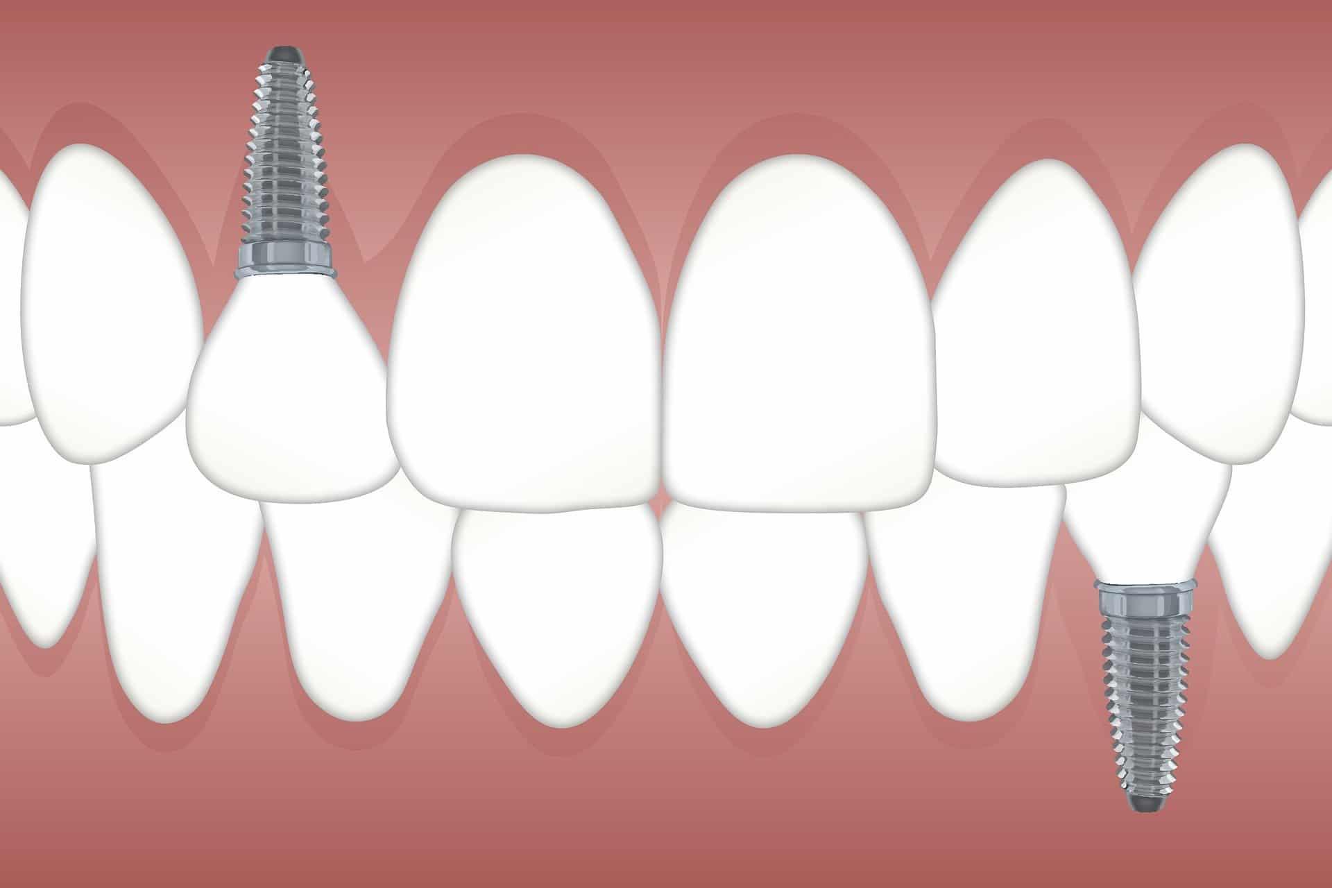 圖說、植牙會將植體植入骨頭取代原本牙根,除了恢復咬合能力還能持續刺激牙床減緩萎縮(圖片來源:Pixabay)