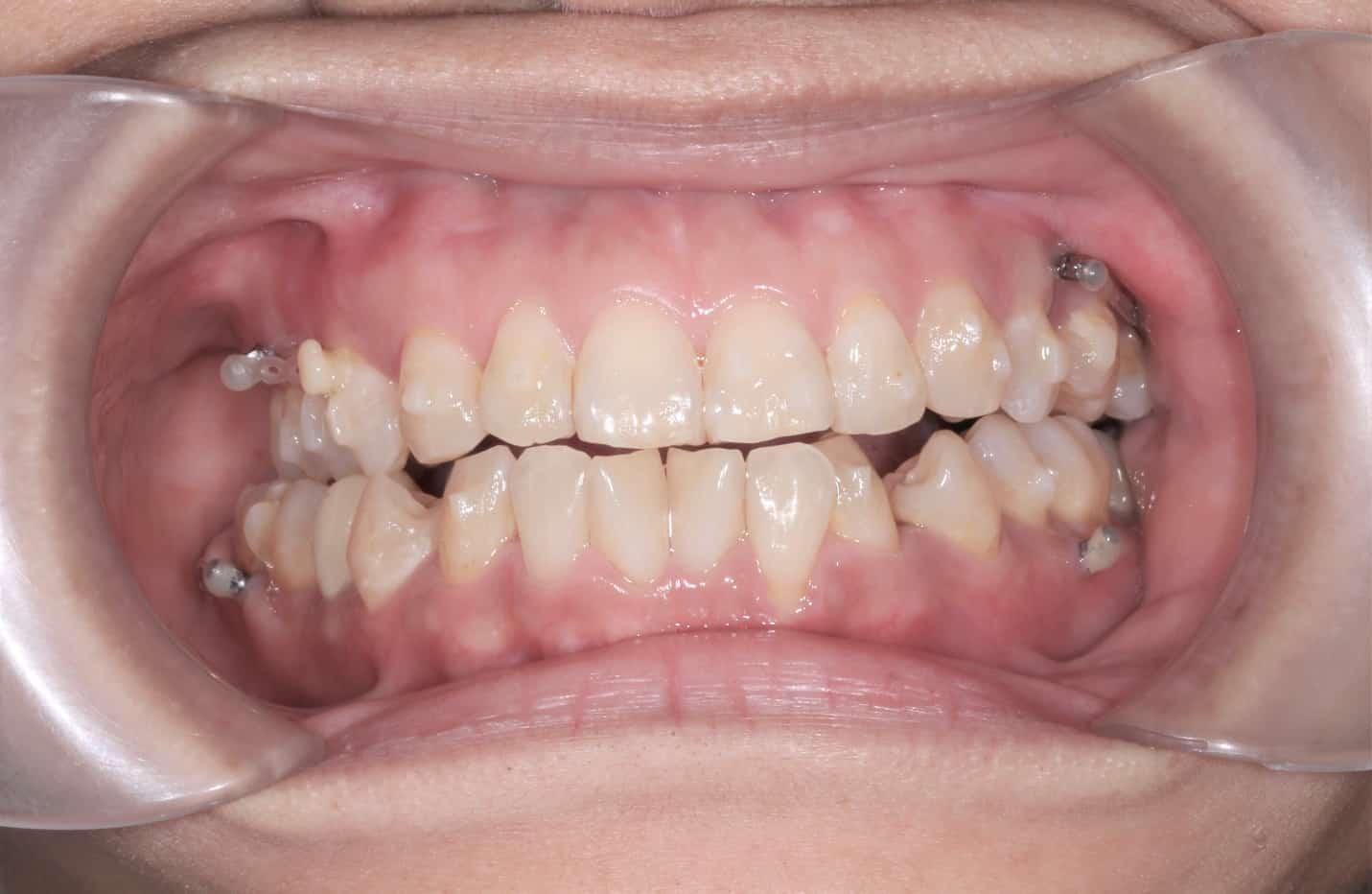 圖說:我目前上下左右都打了骨釘。可以明顯看出牙齒中線不對齊、下排牙齒亂、咬合不正的問題
