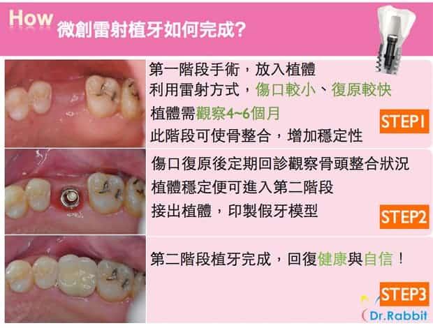 微創雷射植牙如何完成-瑞比牙醫診所