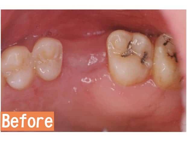 微創雷射植牙治療前-瑞比牙醫診所