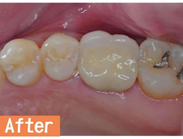 微創雷射植牙治療後-瑞比牙醫診所