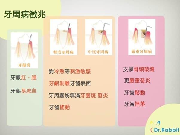 牙周病各階段徵兆,提醒大家要定期進行口腔檢查