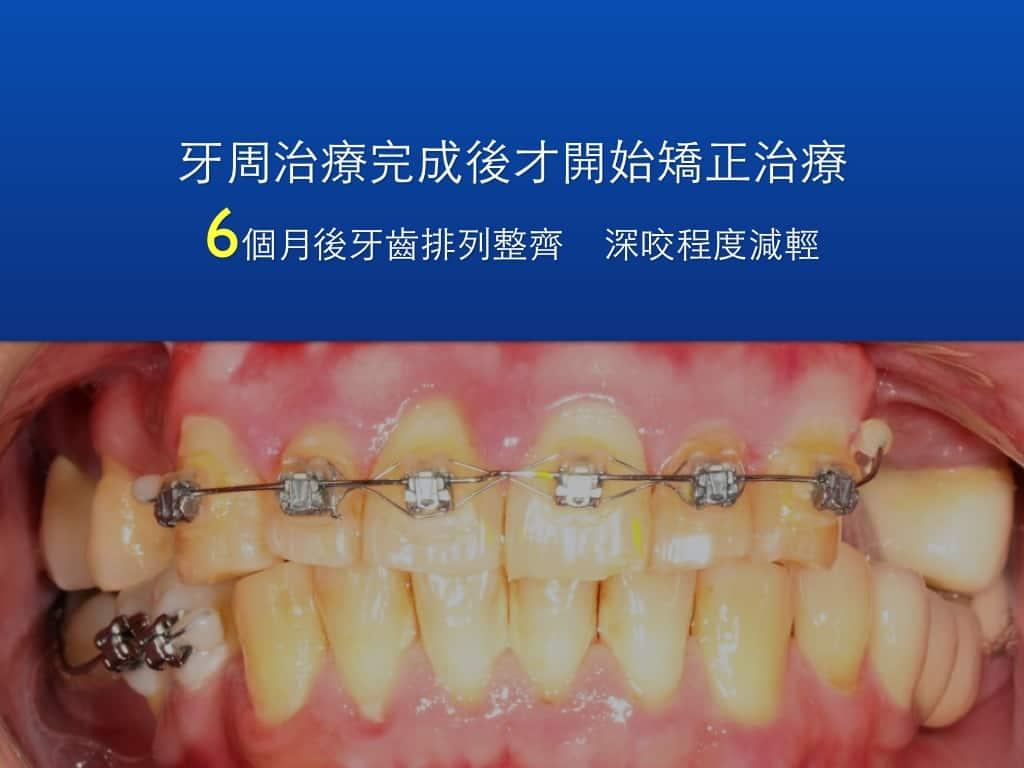 牙周病矯正