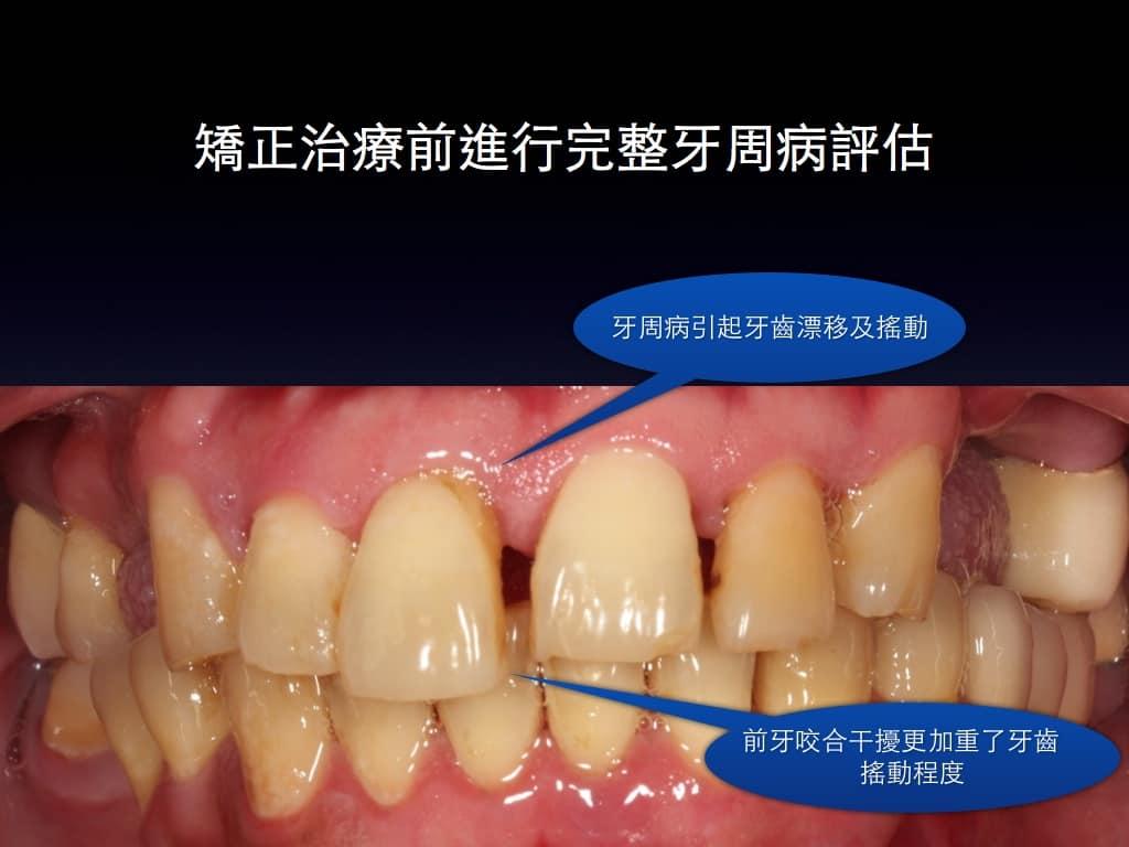 牙周病矯正2