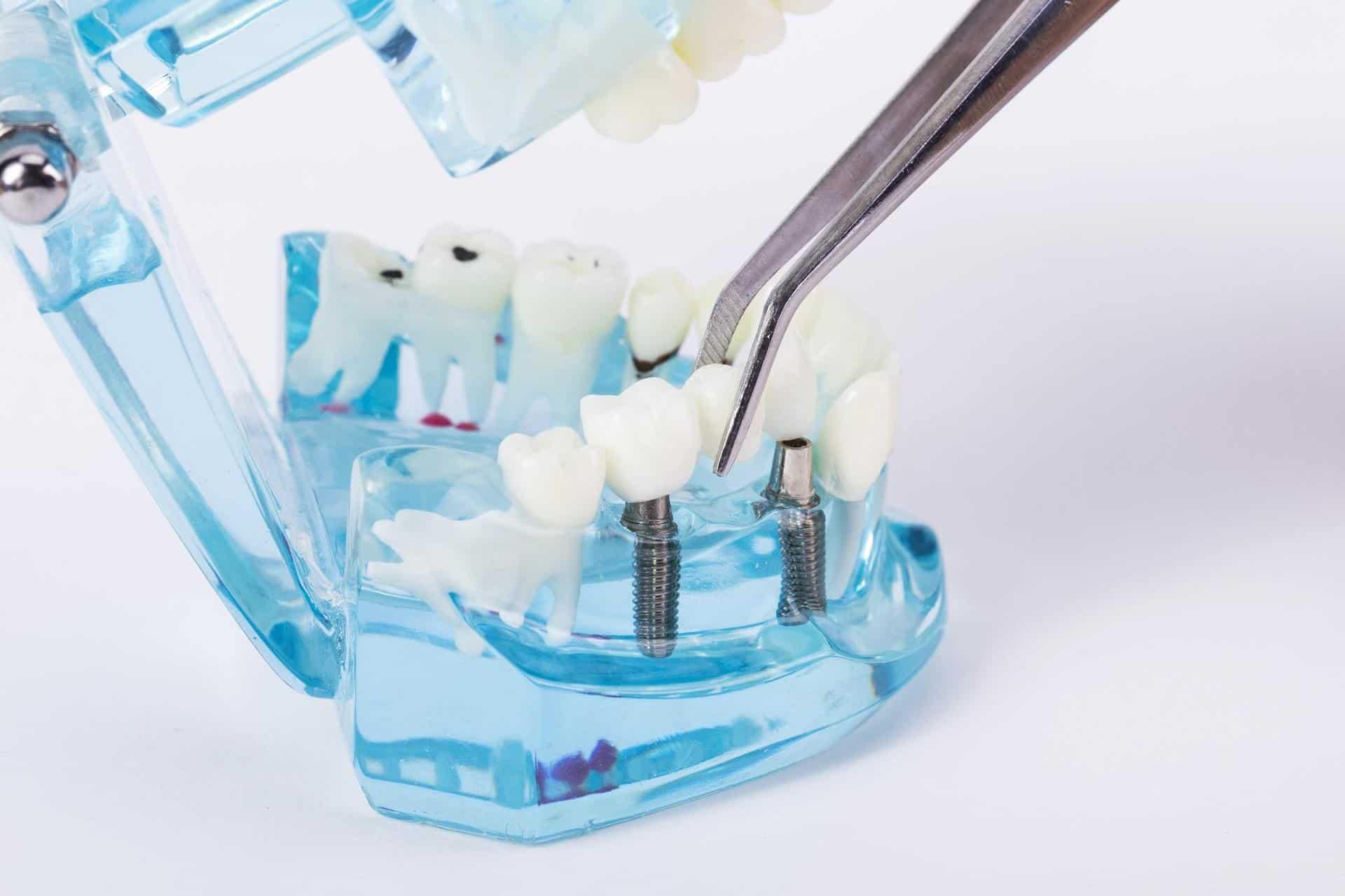 牙橋是一種固定式假牙,用缺牙處前後兩顆牙作為橋墩的處理方式(圖片來源:Lovepik)