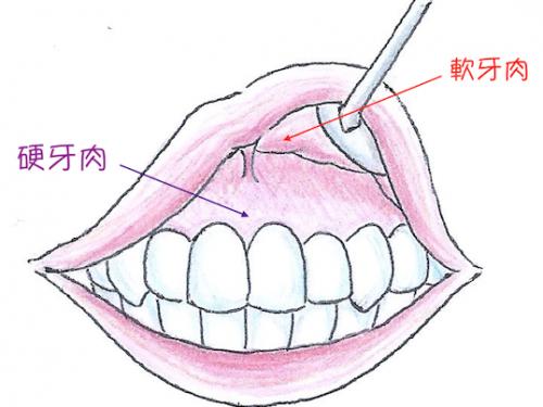 牙齦對植牙有多重要?