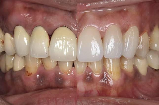 牙齒整齊但牙周色素沈澱仍相當不美觀(左圖),陶瓷貼片(右上圖)可讓笑容更加完美