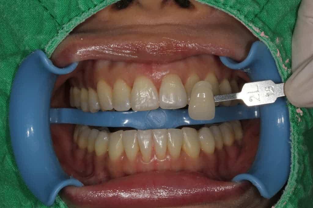 牙齒美白服務-冷光美白術前-瑞比牙醫