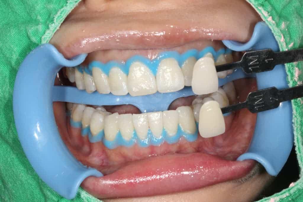 牙齒美白服務-冷光美白術後-瑞比牙醫