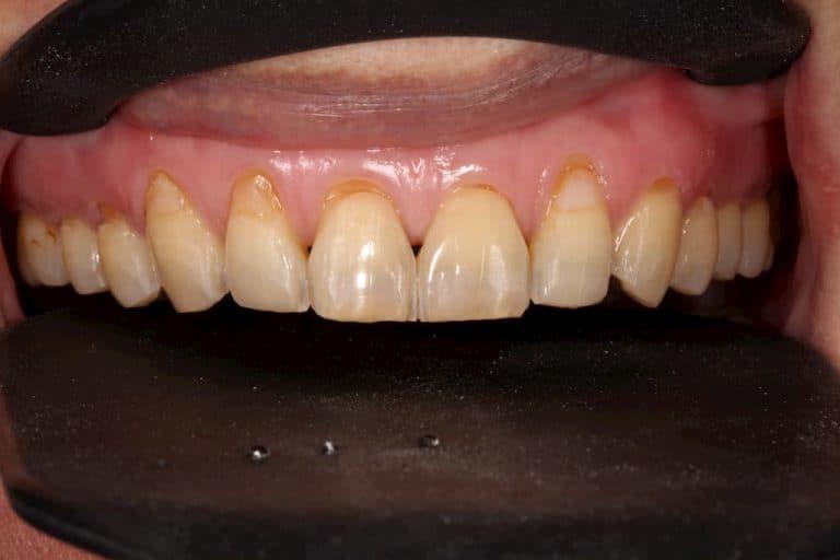 牙齒美白貼片-上排貼片術前