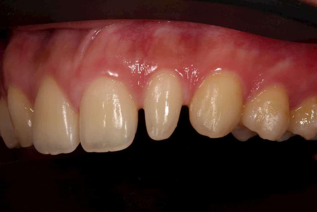 牙齒美白貼片服務-22側門牙術前-瑞比牙醫