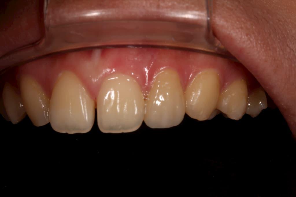 牙齒美白貼片服務-22側門牙術後-瑞比牙醫