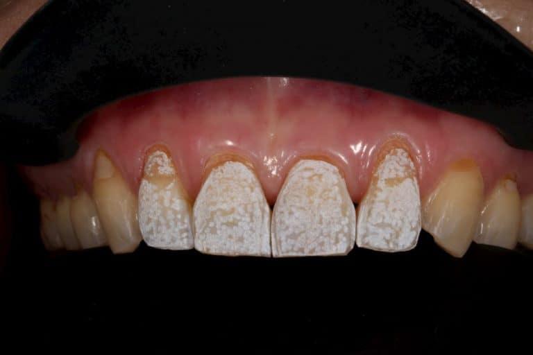 牙齒美白貼片-上排貼片術中