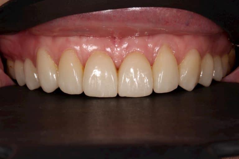 牙齒美白貼片-上排貼片術後