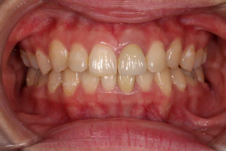 牙齒美白貼片-術前