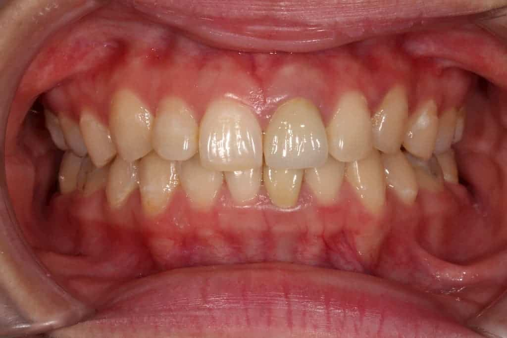 牙齒美白貼片服務-5-5術前-瑞比牙醫