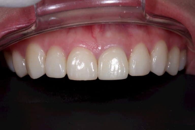 牙齒美白貼片-術後