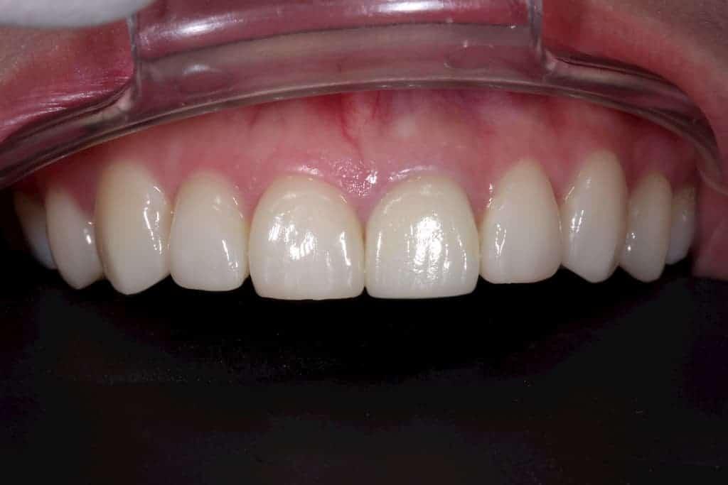 牙齒美白貼片服務-5-5術後-瑞比牙醫