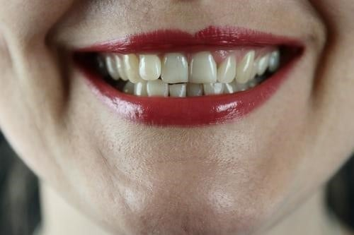 牙齒與牙齦的連接處很容易成為清潔死角,滋生牙菌斑(圖片來源:Unsplash)