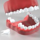缺牙該植牙還是做假牙?植牙要保險嗎?微創治療有哪些好處、後遺症?注意事項一次了解!