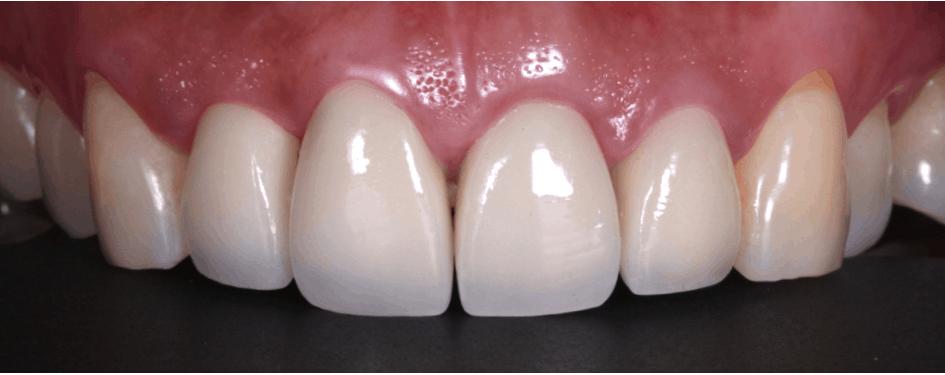 牙齦高度調整