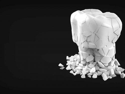 缺牙要植牙還是做牙橋?做牙橋會牙齦腫痛?裝牙橋優缺點、清潔保養看這篇