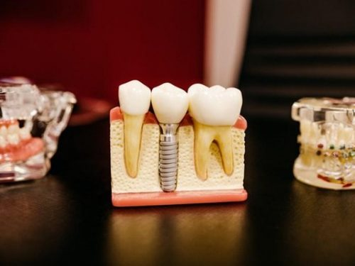 牙周病可以植牙嗎?牙周病會好嗎?牙周三合一療法是什麼?疑問與治療程序一次大公開