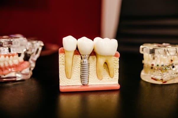 缺牙患者如果有牙周病可以植牙嗎?瑞比牙醫一次解答牙周病相關疑問(圖片來源:Unsplash)