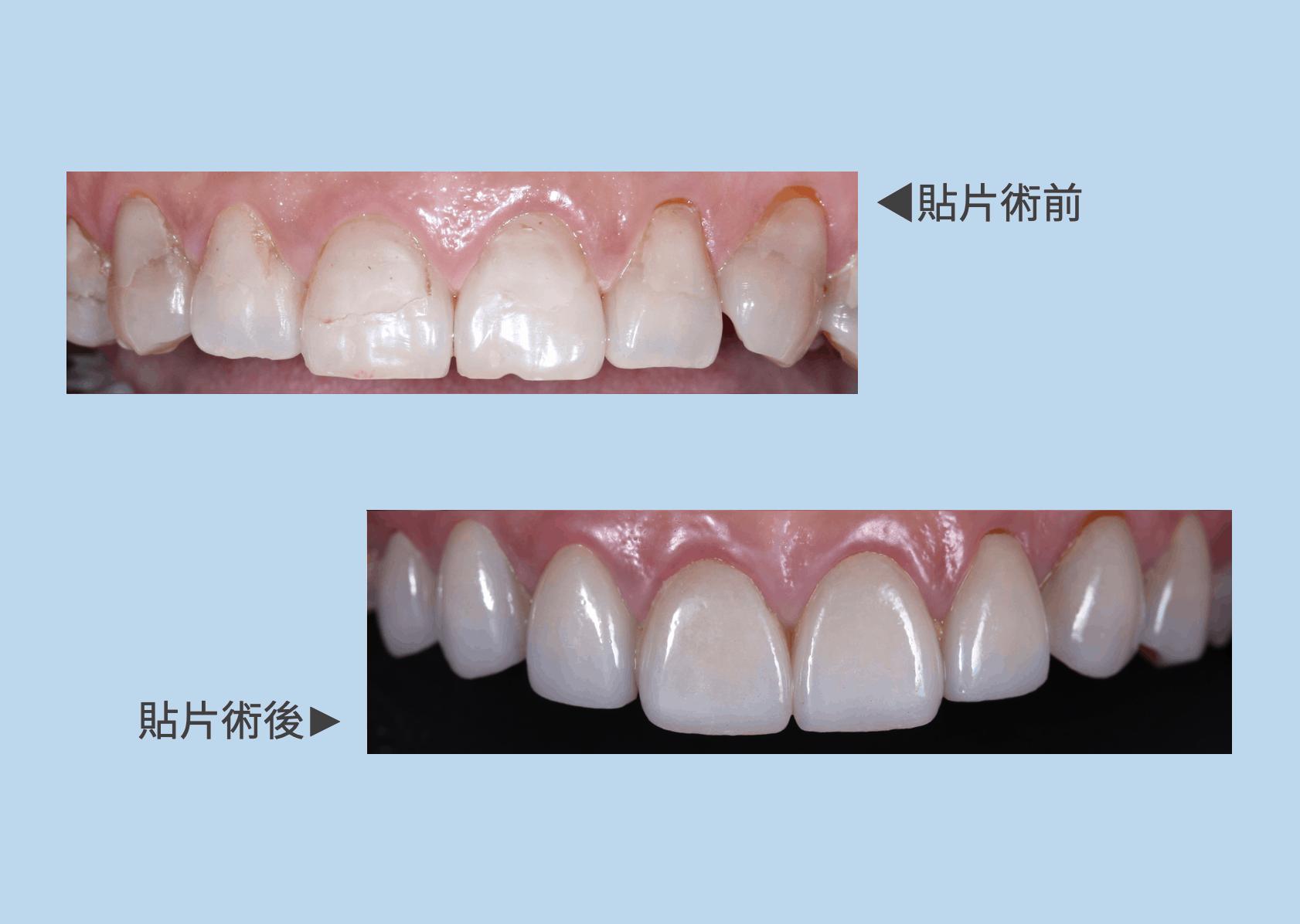 瑞比-牙齒美白貼片