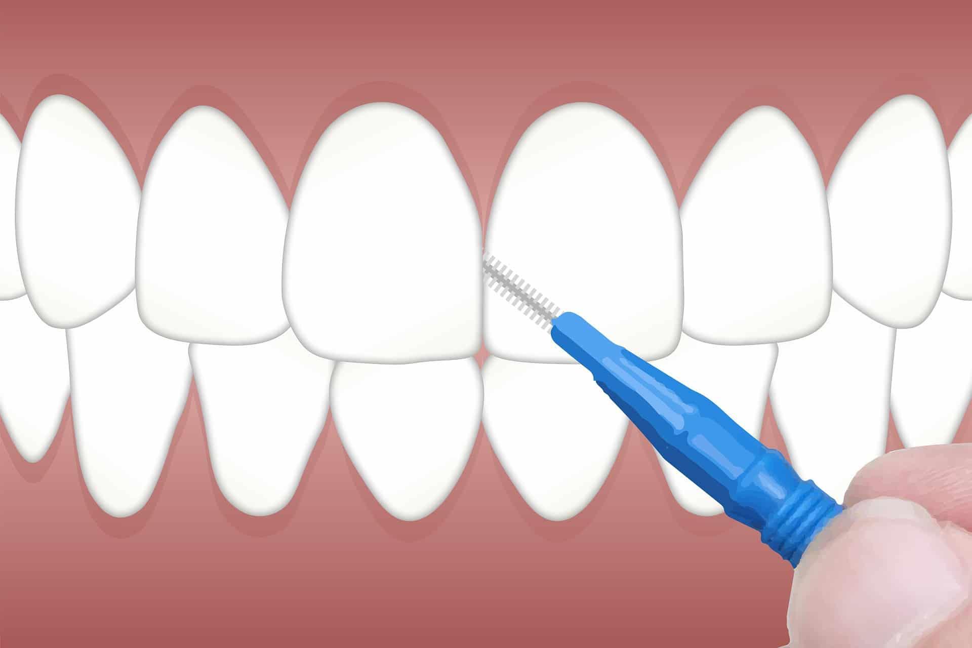 運用牙間刷可清潔刷牙容易忽略的死角(圖片來源:Pixabay)