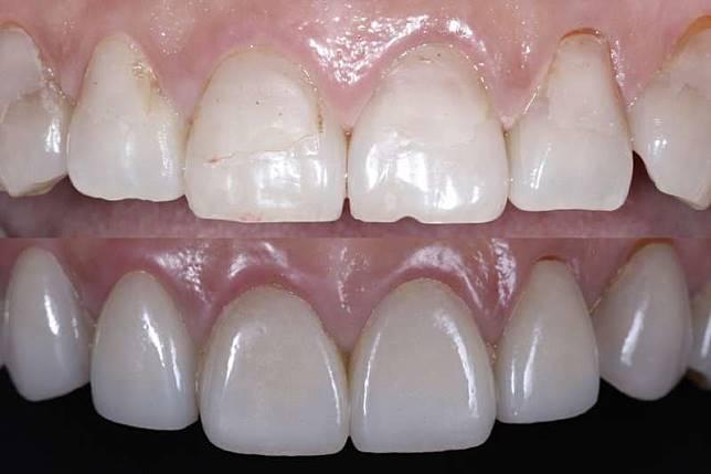 陶瓷貼片(下圖)可避免傳統樹脂貼片(上圖)不完整的補強方式及色素沈澱等缺點
