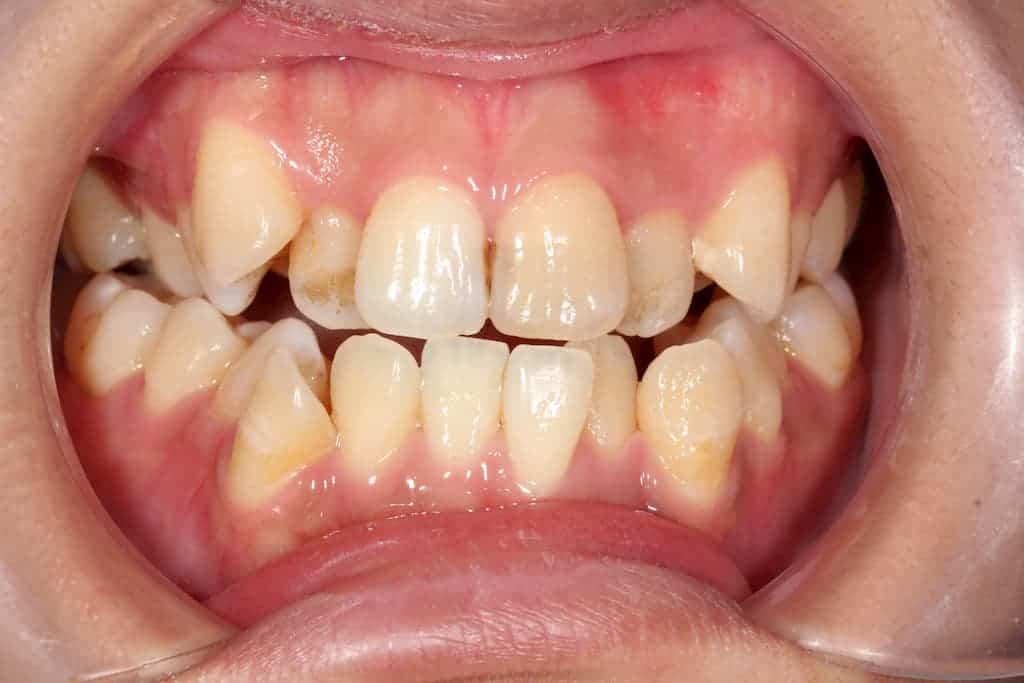 隱適美案例-牙亂咬合不正術前-瑞比牙醫診所