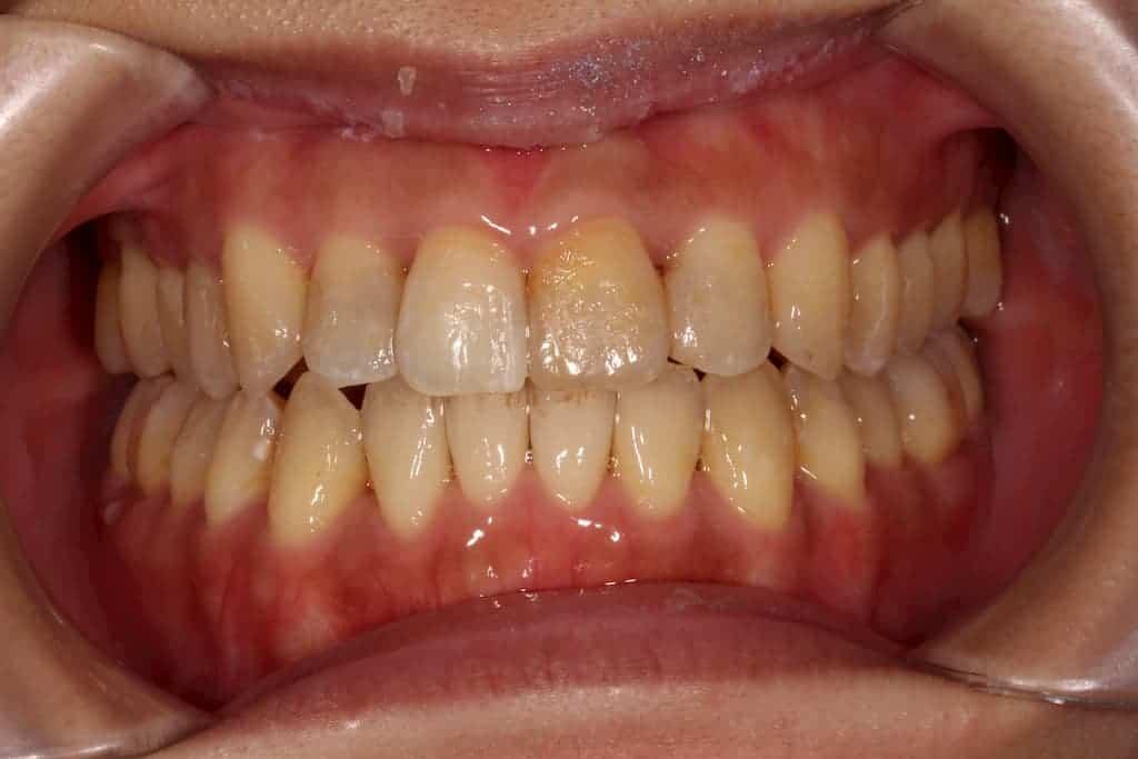 隱適美案例-牙亂咬合不正術後-瑞比牙醫診所