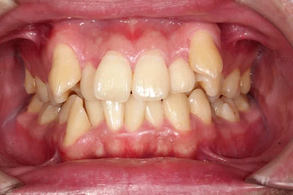 隱適美案例-牙亂術前-瑞比牙醫診所