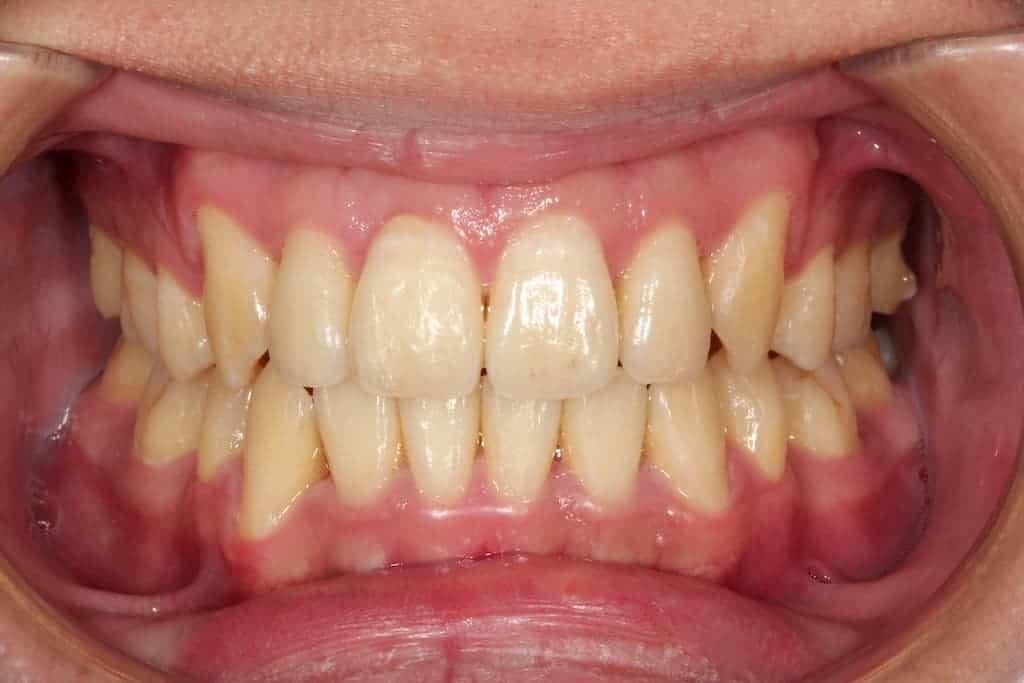 隱適美矯正-牙亂術後-瑞比牙醫診所