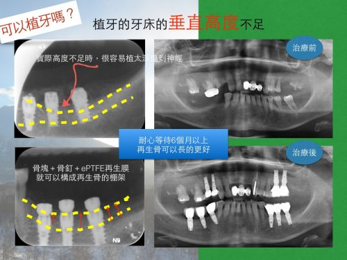 牙床萎縮太多,植牙該怎麼做?