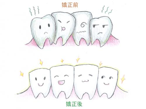 用矯正改善牙齒及避免口腔問題吧!