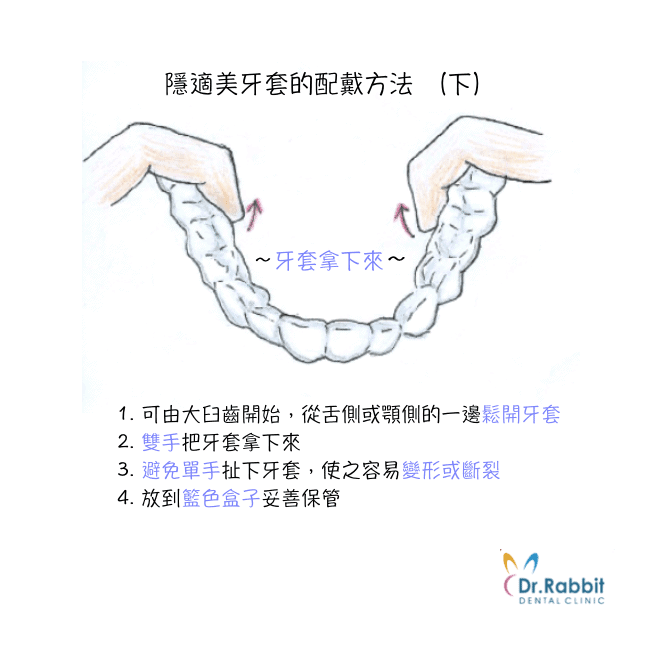 隱適美牙套配戴方法