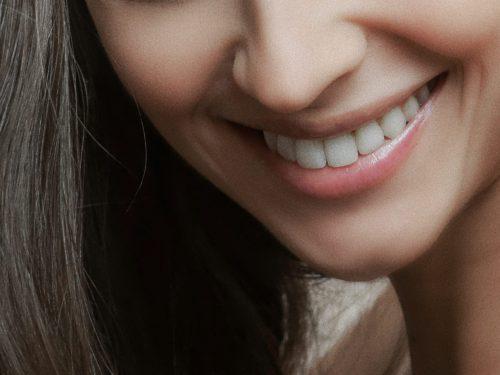 牙齒美白的選擇 (下)